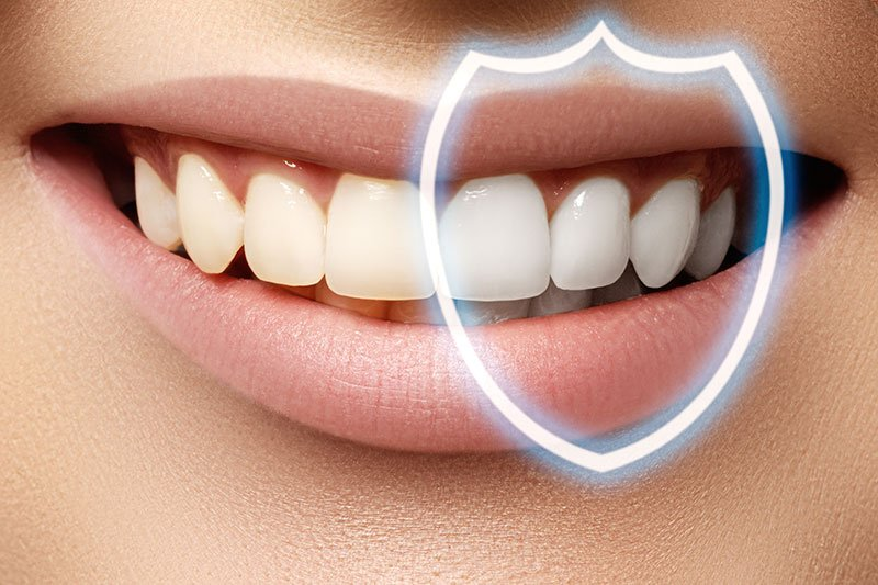 Teeth-Whitening-important-facts